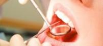 بهترین ضدعفونیكننده برای دهان و دندان