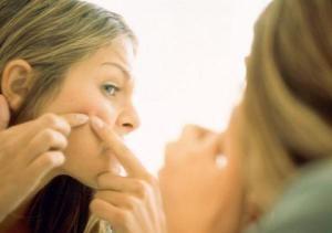 آکنه یا جوش صورت را چگونه درمان کنیم ؟