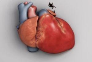 عوامل موثر در ابتلا به بیماری تپش قلب