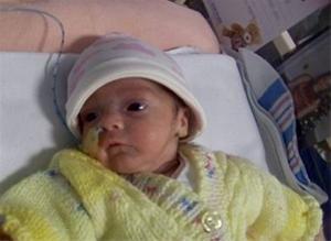 تولد نوزاد معروف به معجزهای در انگلیس