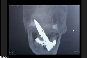 مردی که چهار سال یک چاقو در جمجمه اش بود !!