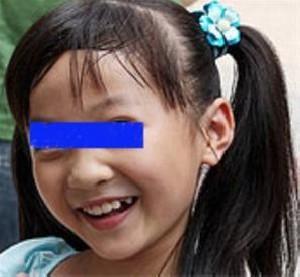 دختری مبتلا به بیماری بسیار عجیب خنده