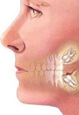 مشكلات دندان عقل برای انسان