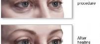 انتخاب بالش مناسب برای پیشگیری از پف چشم