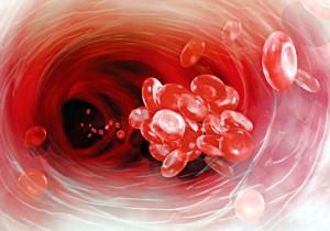 بهبود و درمان چربی خون بالا با تغییر شیوه زندگی