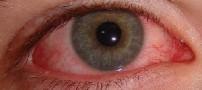 چگونه قرمزی چشم ها را بعد از آرایش رفع کنیم