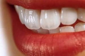 باورهای غلط درباره سلامت دندان ها