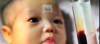 تولد نوزادی که خونش صورتی رنگ است !!