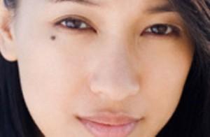 خال های پوستی چه زمانی مشکل ساز می شوند؟
