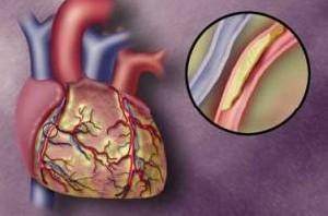 حملات قلبی در این ساعت بیشتر می شوند ؟!