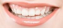 چگونه دندانهای زیبا داشته باشیم ؟