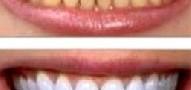 زردی دندان ها را چگونه برطرف کنیم ؟