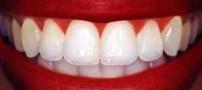 تأثیر جراحی فک و صورت بر زیبایی لبخند