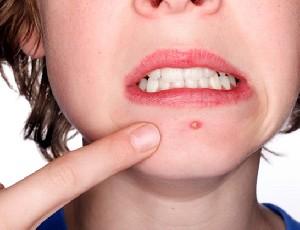 روش های درمان جوش و لک صورت