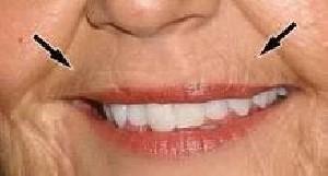 روش هایی برای کاهش خطوط لب