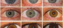تغییر رنگ چشم فقط با 6 میلیون تومان! +عکس