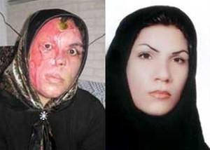یک زن دیگر قربانی اسید پاشی شد +عکس