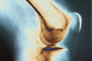 آیا صدا دادن مفصل ها نشانه بیماریست؟