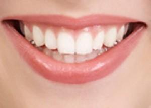 برای دندان سفید کننده ای وجود ندارد