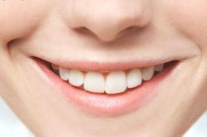 راهکارهایی برای سفیدی خیره کننده دندانها