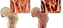 در مورد پوکی استخوان چه می دانید؟