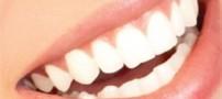 آیا فلوراید باعث پوسیدگی دندان می شود؟