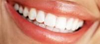 تغذیه ای درست برای داشتن دندان هایی سفید