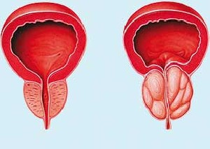 نکاتی مهم در مورد هورمون های مردانه