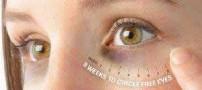 روشی مناسب برای درمان تیرگی دور چشم ها