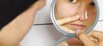 جوش یا آكنه یكی از شایع ترین مشكلات پوستی