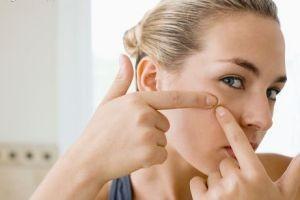 تاثیر تغذیه مناسب بر روی جوش های صورت
