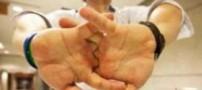 از شکستن قلنج انگشت ها چه میدانید؟!