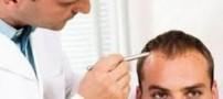 درباره کاشت موی طبیعی چه میدانید؟