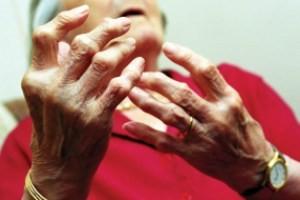 مواد غذایی مفید برای مبارزه با آرتروز استخوان