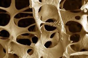 توصیه هایی مهم برای تقویت استخوانها
