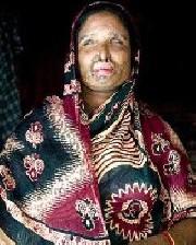 مردی که پس از جدایی، همسرخودرا با اسید سوزاند