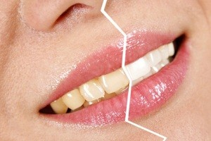 دلیل زردی دندان هایمان چیست؟