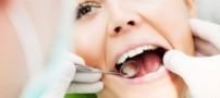 مراقبت از دندان در دوران بارداری