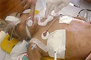 مرگ تلخ کودکی 5 ساله زیر شلاق های مرگبار ناپدری