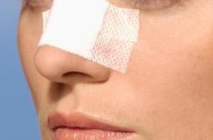 چیزهایی که در مورد جراحی بینی باید بدانید