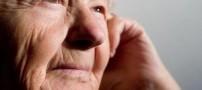 آیا چین و چروک صورتتان شما را اذیت می کند؟