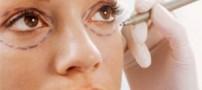 با این نوع آرایش سیاهی زیر چشم تان را محو کنید