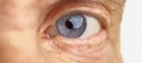 این بیماری چشمی هیچگونه  علامت مشخصی ندارد
