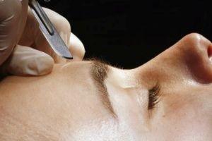 آیا الكترولیز،موها را برای همیشه از بین می برد؟