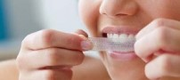 راه حل هایی برای فرار از دندان های زرد