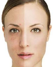 روشهایی برای از بین بردن لکه های سیاه پوست