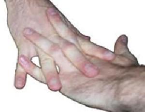 آیا شکستن انگشتان کار مضریست؟
