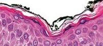 مقابله با التهابات پوستی