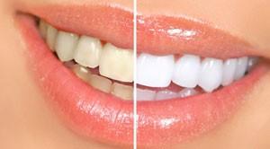 روشهایی برای سفید کردن دندان در منزل