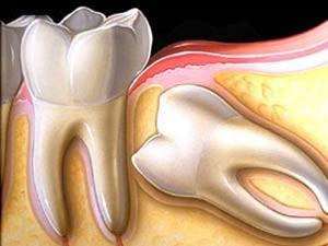 درمان دندان نهفته را عقب نیندازید